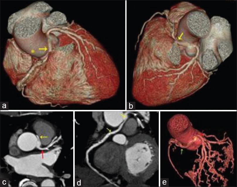 Clinico-radiological correlation of coronary artery anomalies in ...