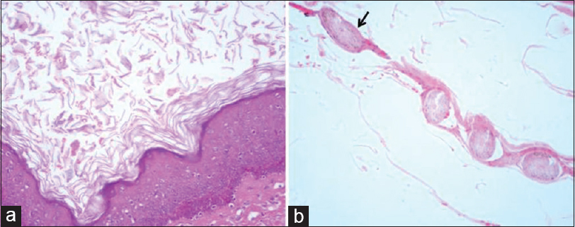 Spectrum of histopathology in spinal lesions Pant I