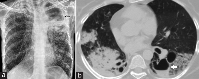 Figure 6: Tubercular Cavity. (a) Chest radiograph frontal projection shows a well-defined thick walled cavity in left upper and midzone with multifocal ill-defined airspace opacities. (b) Axial contrast-enhanced computed tomography thorax (lung window), in a young adult with fever and hemoptysis, exhibits multifocal consolidation involving bilateral lower lobes with intermediately thick cavity with air-fluid level in the left lower lobe. Air-fluid within a cavity usually indicates superadded bacterial or fungal infection.