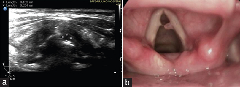 Figure 2: (a) Ultrasonography of the larynx showing a well-defined, small, pedunculated hypoechoic lesion (white arrow) present at the junction of the anterior one-third and posterior two-third of the left vocal cord. (b) Laryngoscopic image of the polyp at the junction of the anterior one-third and posterior two-third of the left vocal cord.