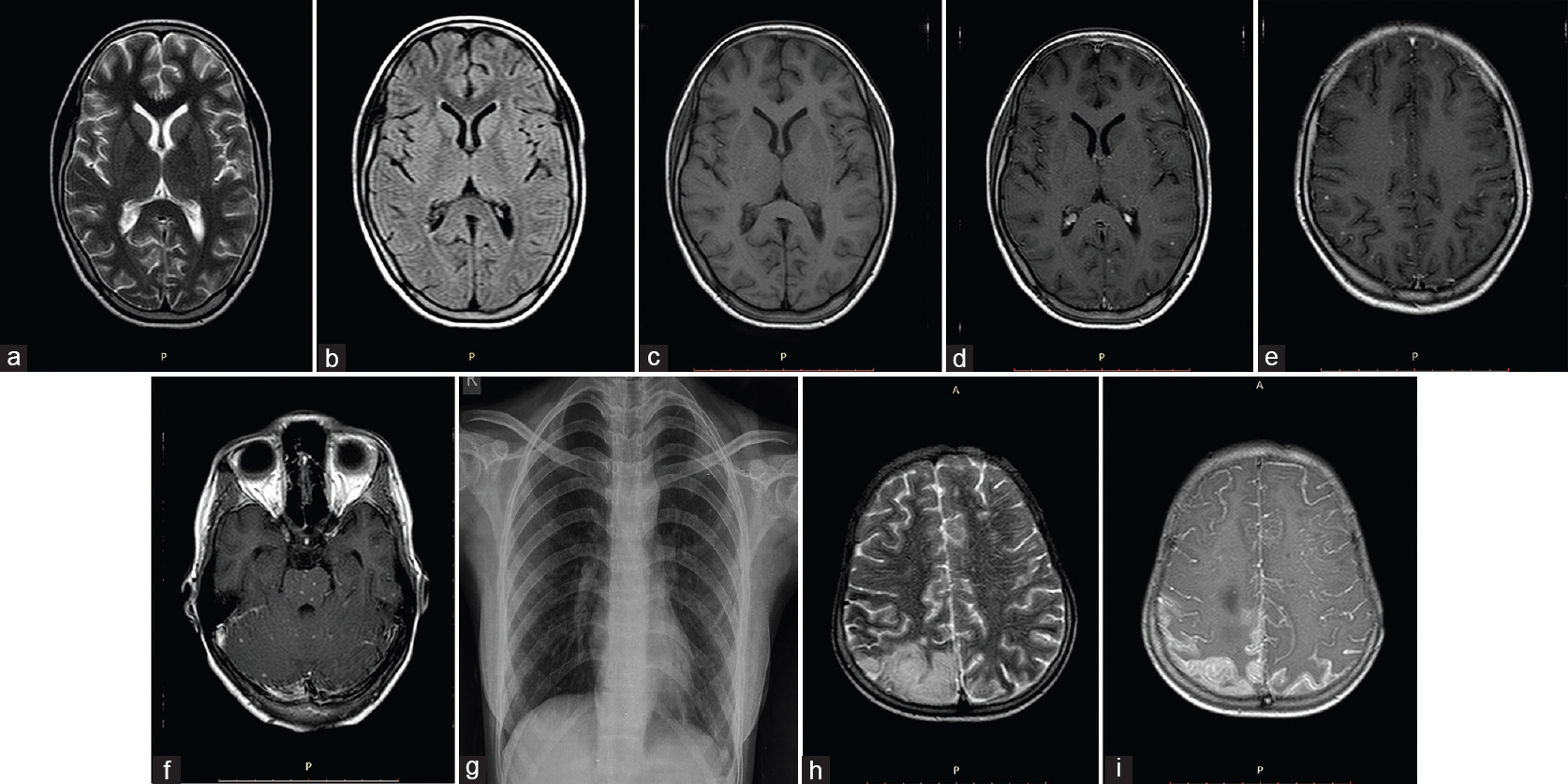 Central nervous system tuberculosis: Rare presentations of a
