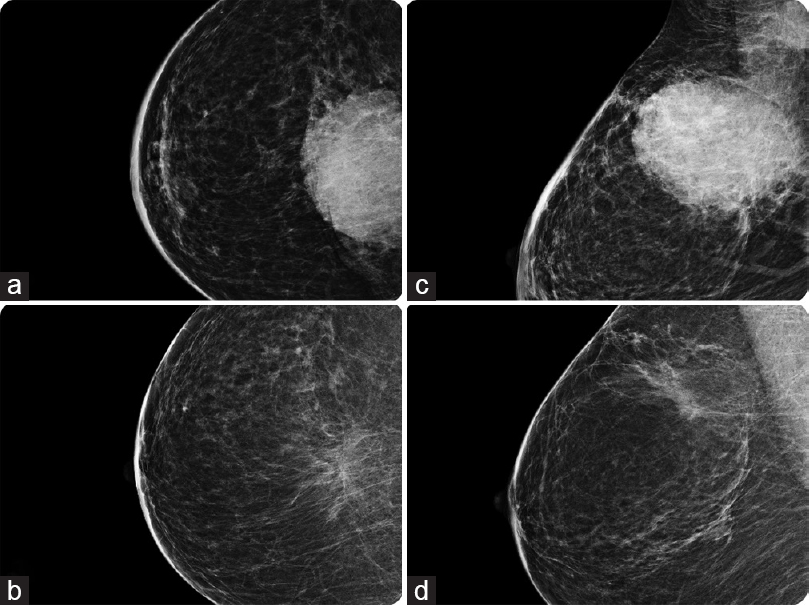 Mammographic and breast tomosynthesis findings in patients