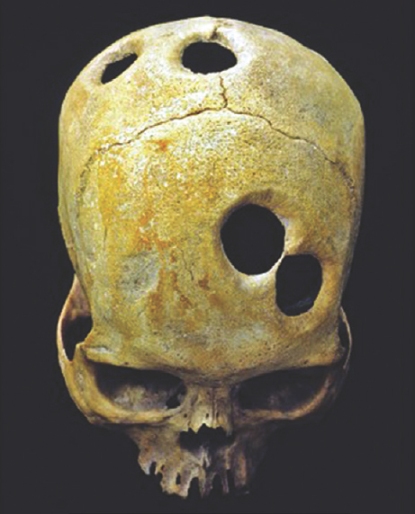 Figure 1: Ancient Inca witch-surgeons created perfect holes in the skulls of patients using flint surgical tools.